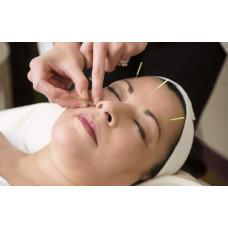 Cosmetic Acupuncture 针灸美容
